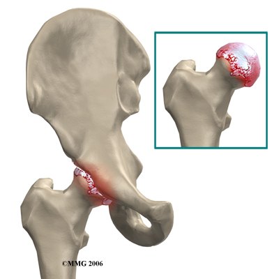 hip_arthroplasty_resurface_rationale01
