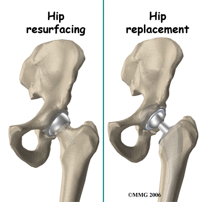 hip_arthroplasty_resurface_rationale02