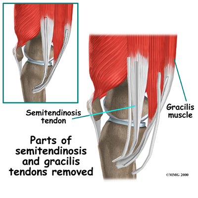 knee_acl_hamstring_tendon_surgery02