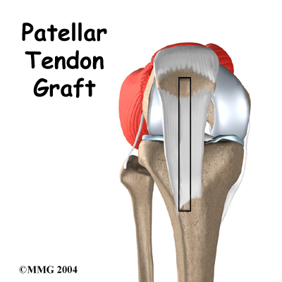 knee_acl_patellar_tendon_intro02