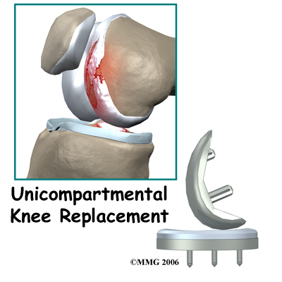 knee_arthroplasty_uni_intro01