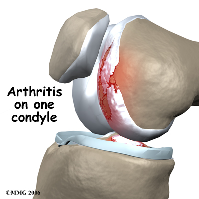 knee_arthroplasty_uni_rationale01