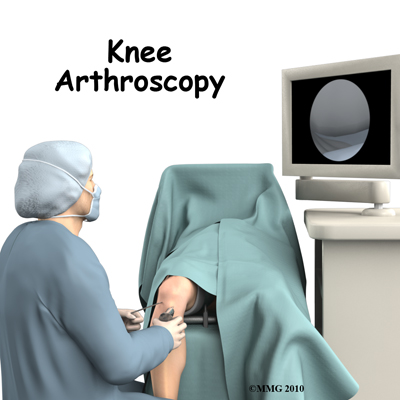 knee_arthroscopy_intro01