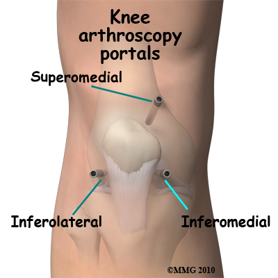 knee_arthroscopy_portals