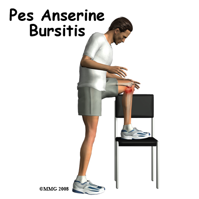 knee_bursitis_pes_anserine_intro01