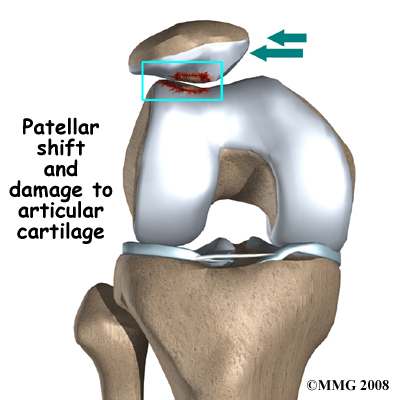 knee_chondromalacia_cause01