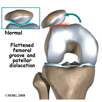 knee_chondromalacia_dislocation_cause03