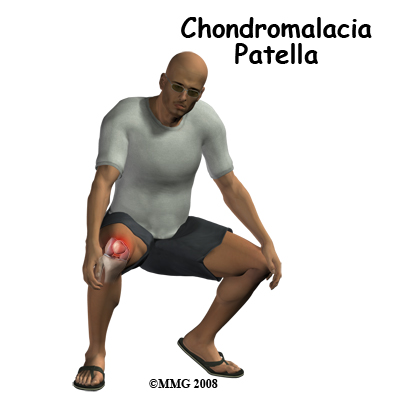 knee_chondromalacia_intro01