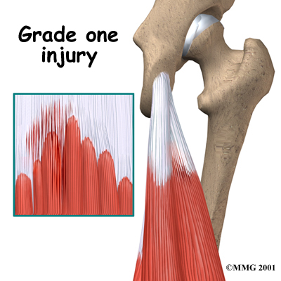 knee_hamstring_diagnosis01