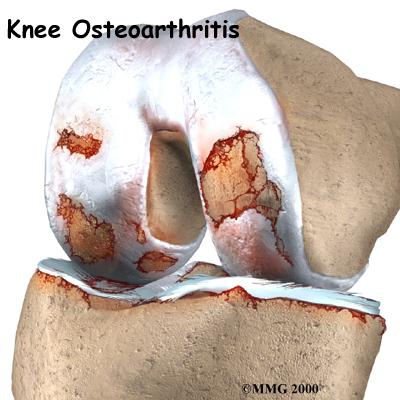 knee_osteoarth_intro01