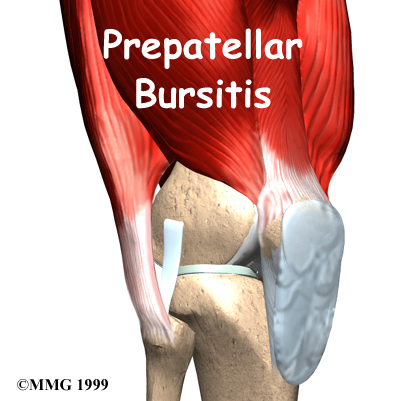 knee_prepatellar_intro01