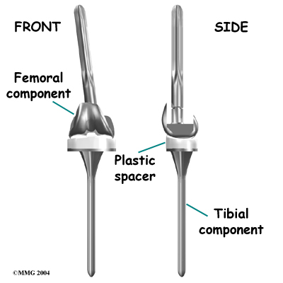 knee_revision_surgery03