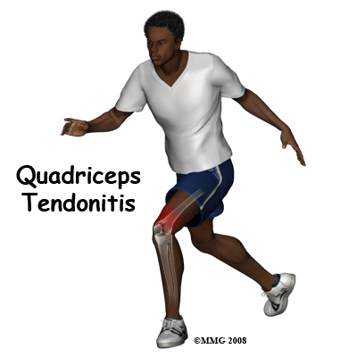 knee_tendonitis_quadriceps_intro01
