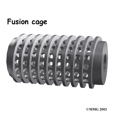 lumbar_fusion_cage_rationale03