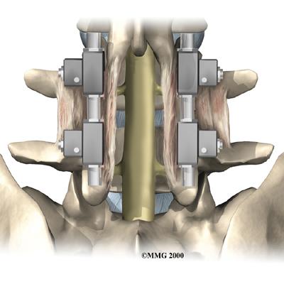 lumbar_posterior_fusion_surgery03
