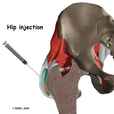 pm_general_inject_hip