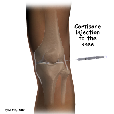 pm_general_inject_knee_cortisone