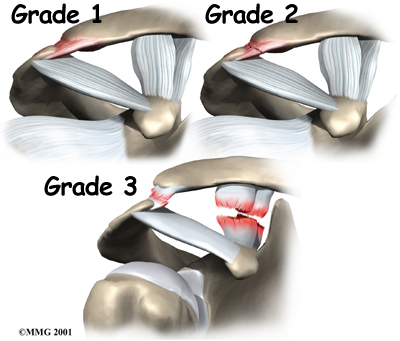 shoulder_acromioclavicular_separation_anat04