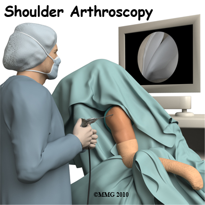 shoulder_arthroscopy_intro01
