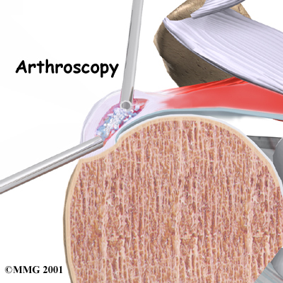 shoulder_calcific_surgery01