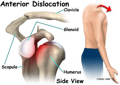 shoulder_dislocation_anatomy11