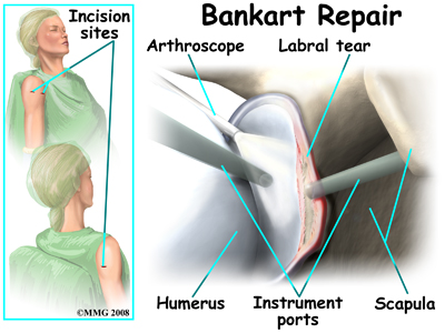 shoulder_dislocation_treatment03