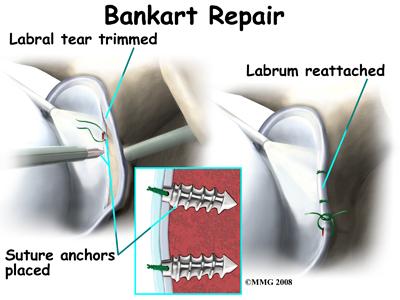 shoulder_dislocation_treatment04
