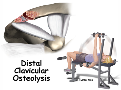 shoulder_distal_clav_osteolysis_intro01