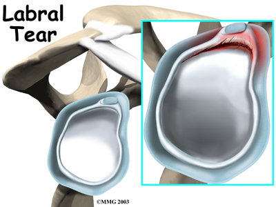 shoulder_labral_tear_intro01