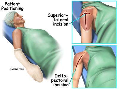 shoulder_reverse_incision_surgery02