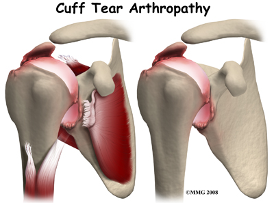 shoulder_reverse_replacement_cta_rationale03