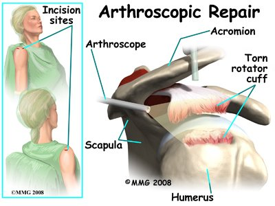 shoulder_rotator_cuff_treatment08