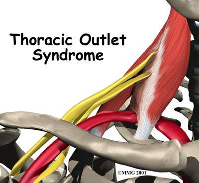 shoulder_thoracic_outlet_syndrome_intro01