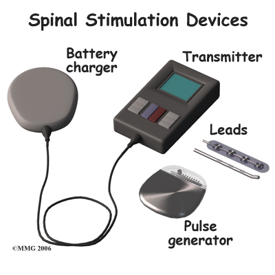 spinal_stim_devices01