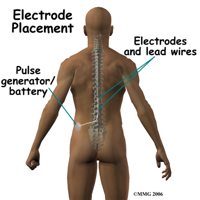 spinal_stim_devices04