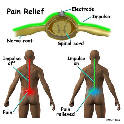 spinal_stim_rationale01