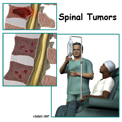 spinal_tumor_intro01