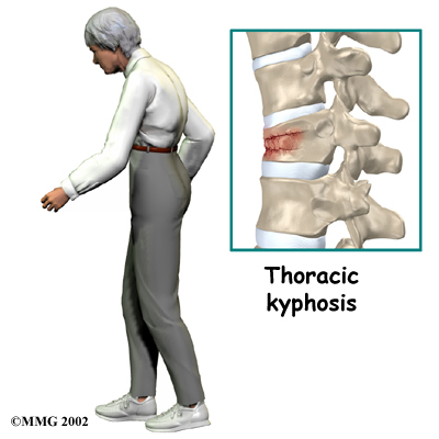 thoracic_compression_fx_cause02