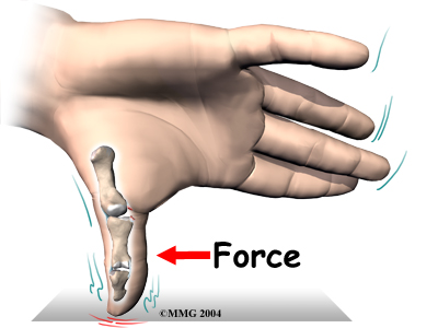 ulnar_collateral_thumb_causes01