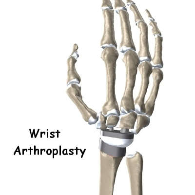 wrist_arthroplasty_intro01