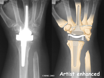 wrist_arthroplasty_surg07