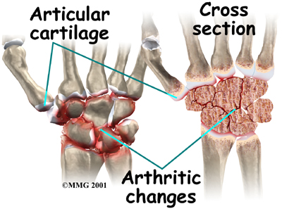 wrist_osteoarthritis_causes02