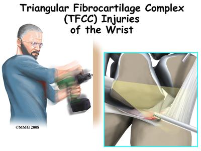 wrist_tfcc_intro01