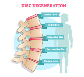 spinal disc graphic